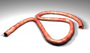 Patologia cordonului ombilical
