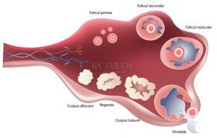Sindromul de hiperstimulare ovariana
