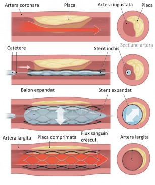 Stenturile coronariene
