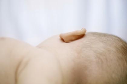 Sindromul morții subite a sugarului
