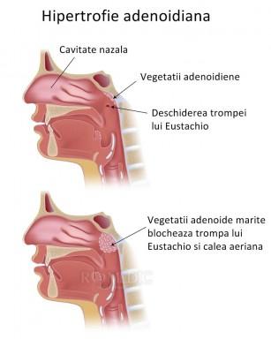 Adenoidita