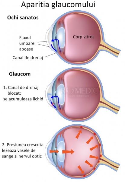 Glaucomul indus medicamentos