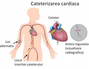 Coronarografia (cateterizarea cardiaca)