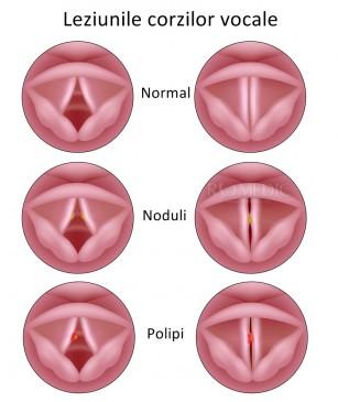 Polipul corzilor vocale