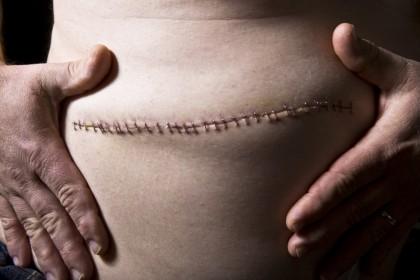 Bolile stomacului operat