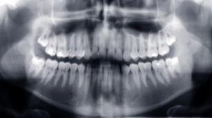 Fractura mandibulară