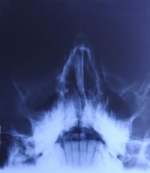 Abcesele periosoase oro-maxilo-faciale