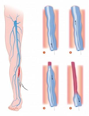 Arteriopatia obliterantă a membrelor inferioare (AOMI)