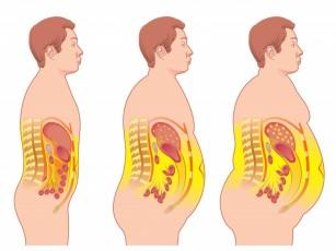 Sindromul metabolic