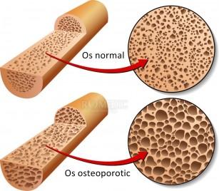 Osteoporoza juvenila