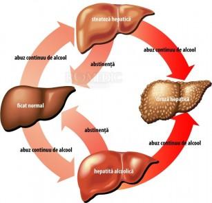 Ciroza hepatica alcoolica