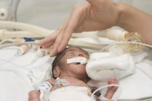 Sindromul de detresa respiratorie a prematurului