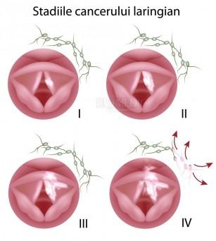 Cancerul de laringe