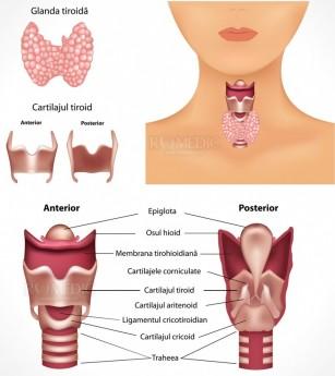 Tiroidita fibroasa (Tiroidita Riedel)