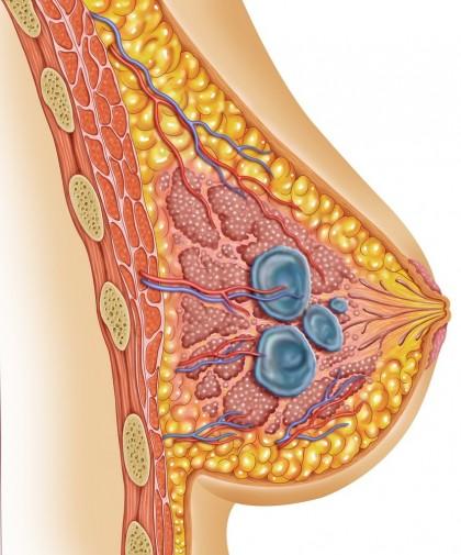 Mastoza fibrochistică