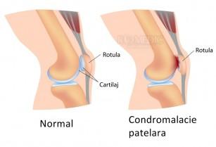Condromalacia rotuliană (patelară) - condropatia