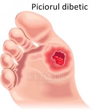 Ulcerele diabetice (mal perforant plantar)