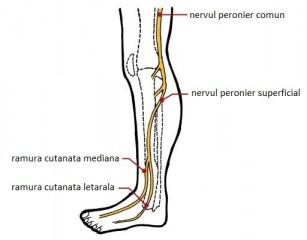 Neuropatia peronieră - paralizia nervului peronier