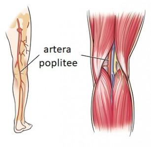 Anevrismul arterei poplitee