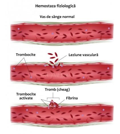 Tromboza, riscul de tromboză și tratamentul antitrombotic: anticoagulante și antiagregante plachetare