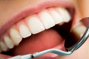 Alungirea dinților