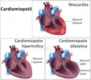 Miocardita - de la cauze la cardiomiopatie dilatativă