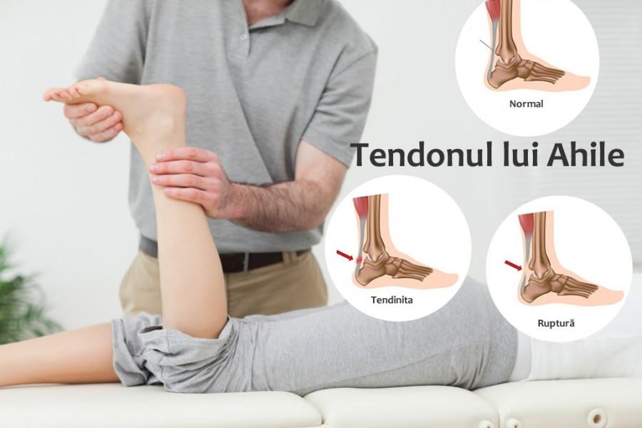 Leziunile tendonului calcanean / ahilean (tendonul lui Ahile)