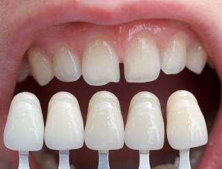 Fațetarea dinților