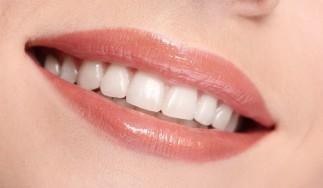 Dinți albi perfecți