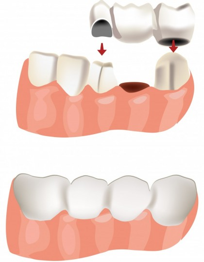 Punțile dentare