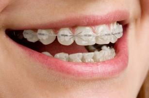 Întrebări frecvente despre tratamentul ortodontic