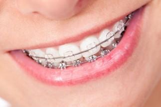 Aparatele dentare ortodontice