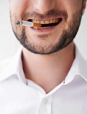 Fumatul și igiena dentară