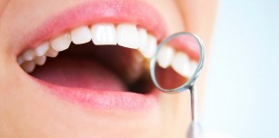 Măseaua de minte - al treilea molar