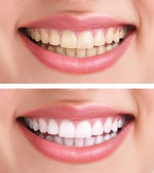 Dinții îngălbeniți - cauze și tratamente