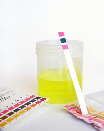 Miros anormal al urinei