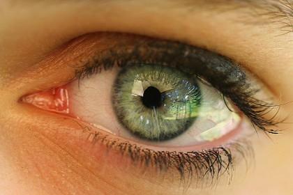 Heterocromia (ochii de culori diferite)