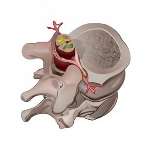 Hernia de disc vertebral