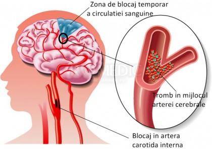 AVC ischemic (ischemia cerebrala)