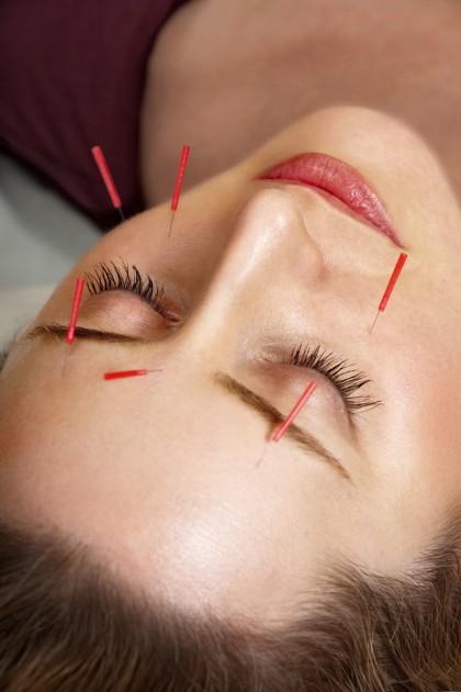 Acupunctura cosmetica - estetica