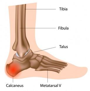 slăbiciune și durere la picioare la mers