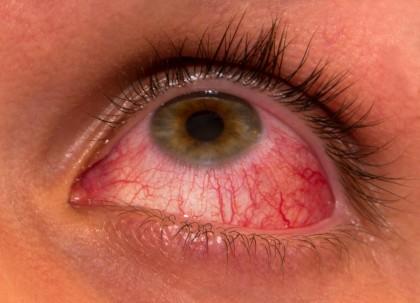 examinarea ochilor pentru a obține drepturi)