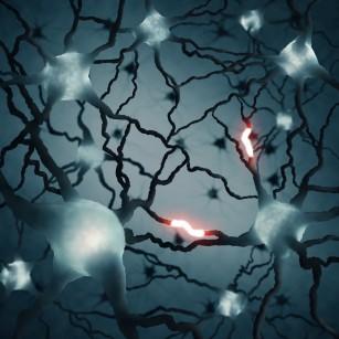 Sindroame ale nervilor cranieni