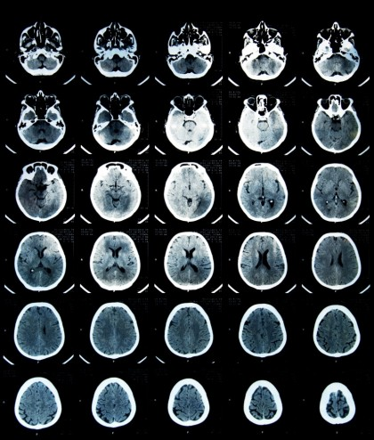 Comotia cerebrala