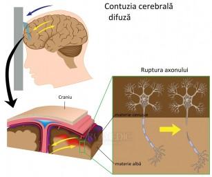 Contuzia cerebrala