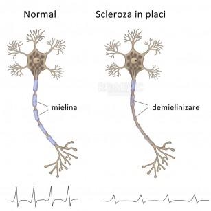 Scleroza in placi