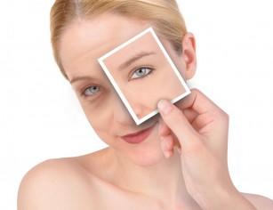 Blefaroplastia - chirurgia estetica a pleoapelor