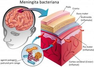 Meningita bacteriana acuta