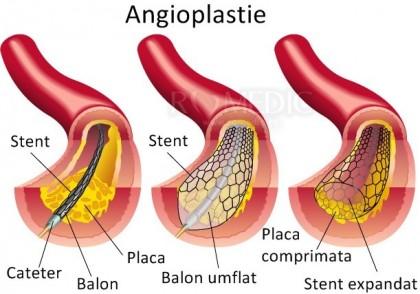 Angioplastia si stentul vascular