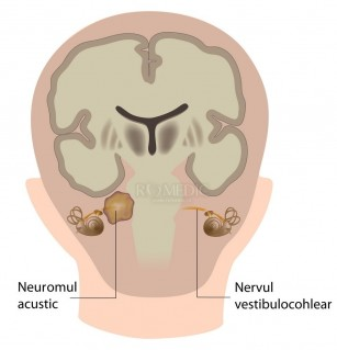 Neuromul acustic - schwanomul vestibular